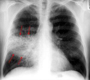рентгенограмма при крупозной пневмонии