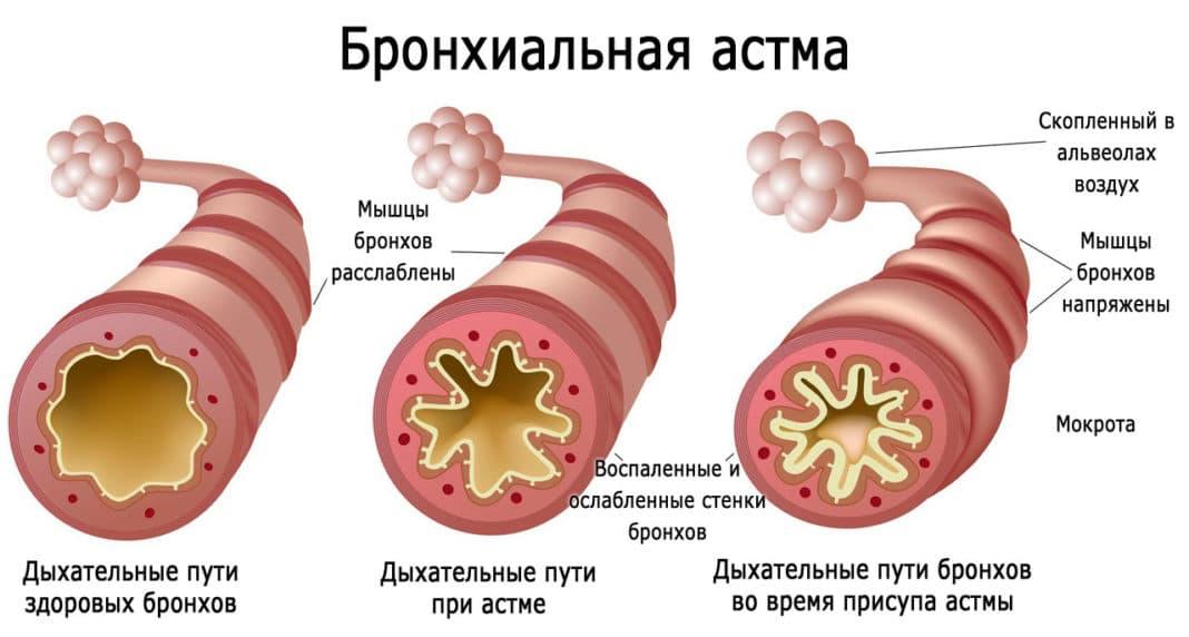 Бронхиальна астма