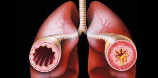 Атопическая бронхиальная астма симптомы