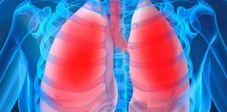 Стафилококковая пневмония