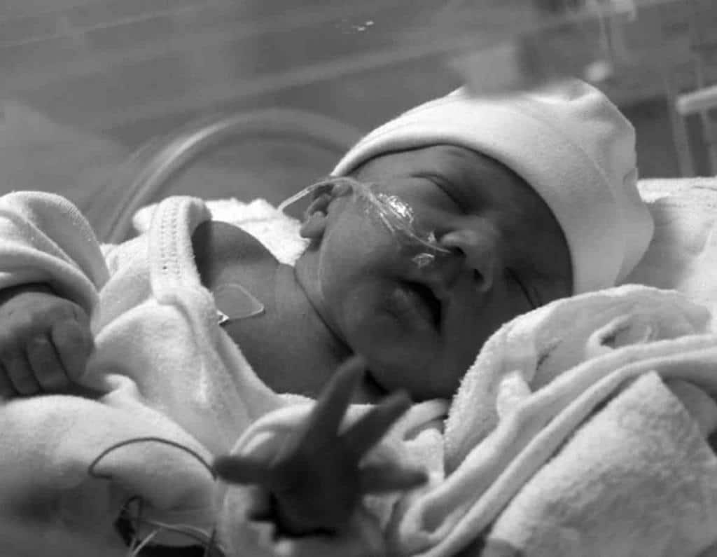 Врожденная пневмония у новорожденных