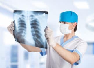 врач смотрит на снимок легких