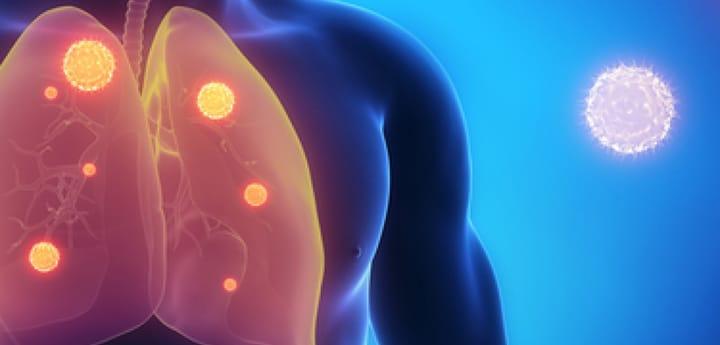 Пути заражения пневмонией