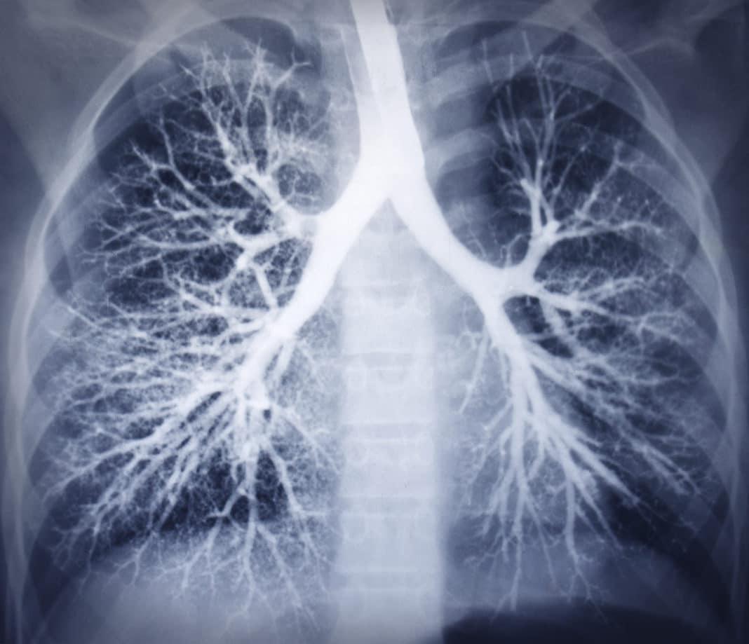 Рентген с применением контрастного вещества