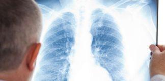 пятна на легких при рентгене
