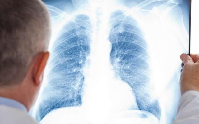 Затемнение на рентгеновском снимке