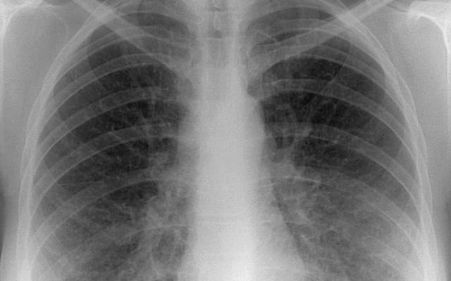 пятно на легких при рентген