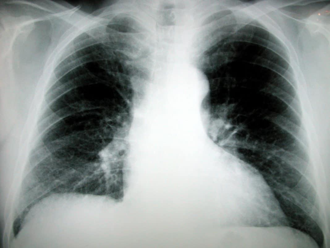 Снимок лёгких перед пневмоэктомией