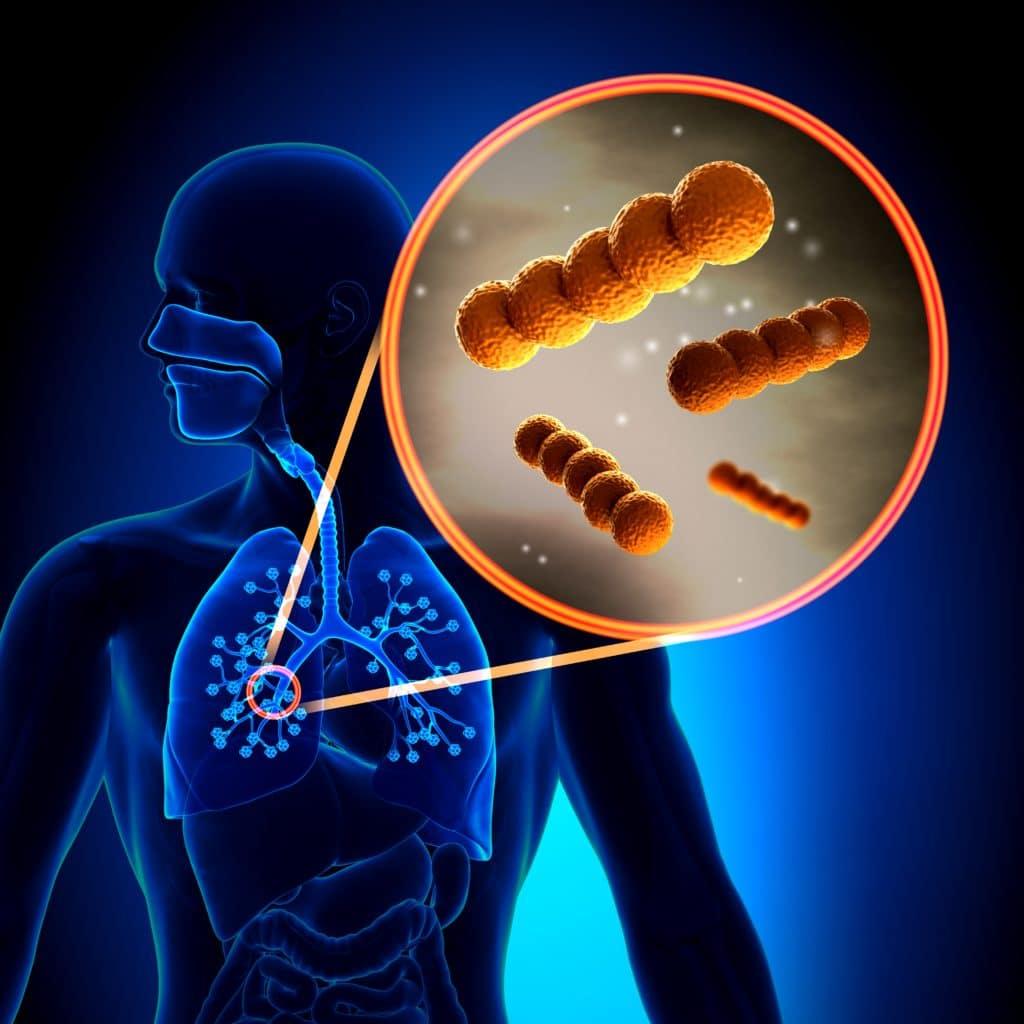 Причины возникновения грибковой пневмонии