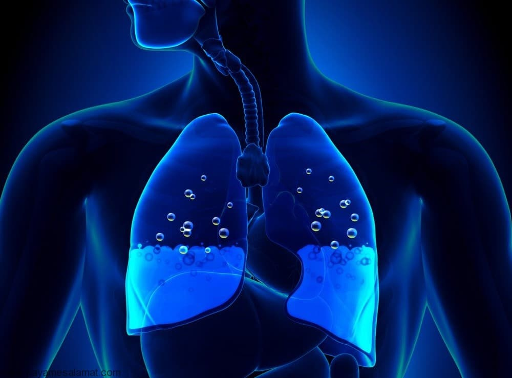 Гидроторакс легких при онкологии лечение народными средствами — Все,что вы хотели знать о легких человека
