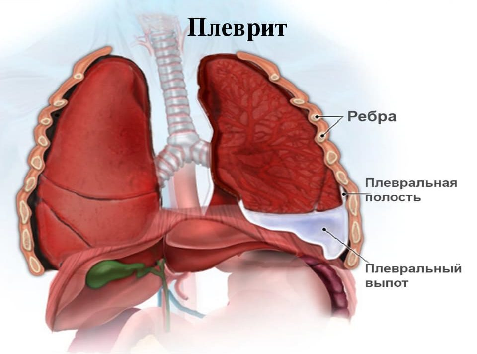 Схематичное изображение образования плеврита в полости легких