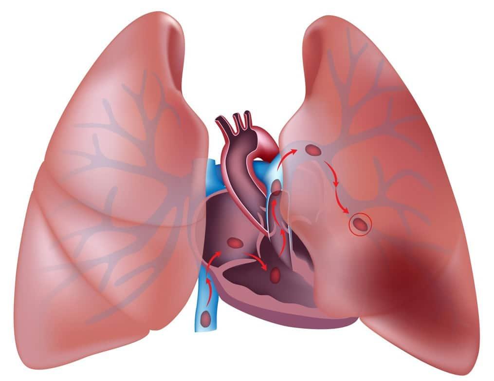 Тромб в легких – причины появления, методы диагностики и способы течения