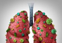 пневмоцистная пневмония