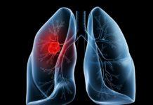 Рак легких на ранней стадии