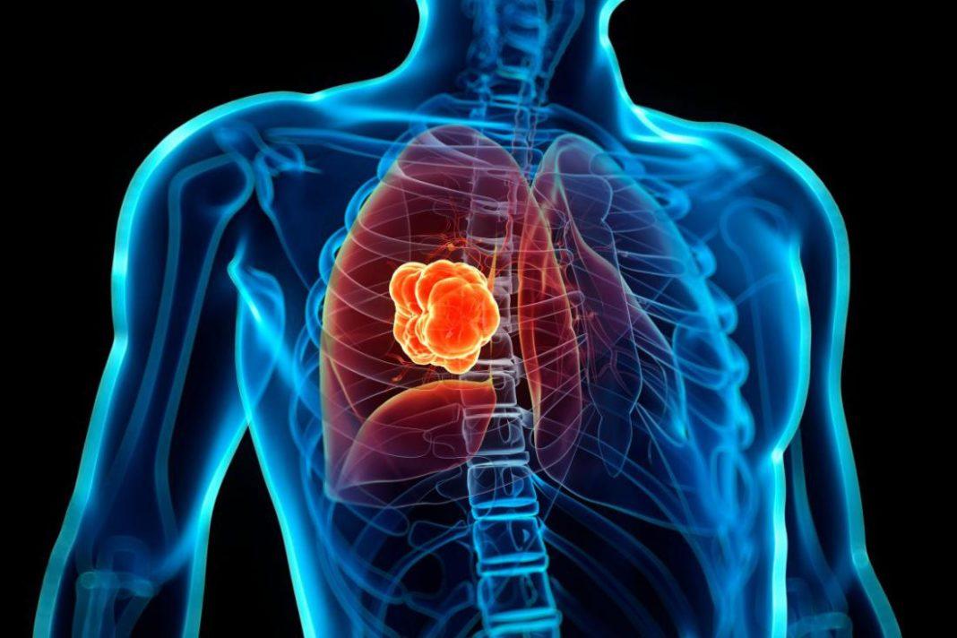 Профилактика рака легких народными методами. Лечение и профилактика рака легких