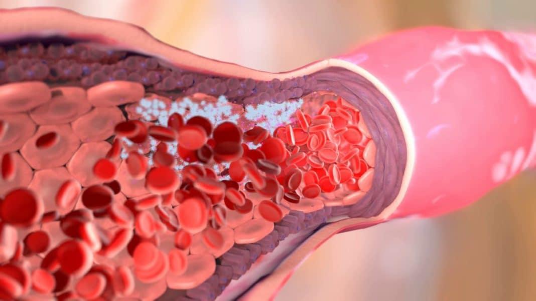 5 возможных симптомов тромба