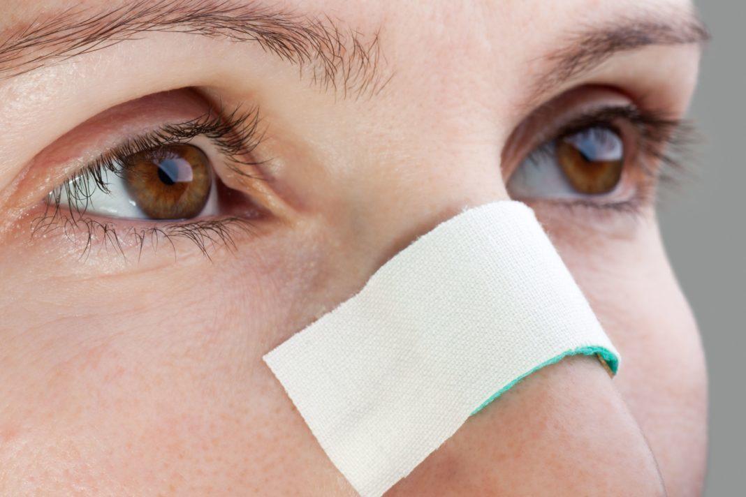 Как вовремя распознать гематому носовой перегородки?