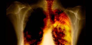 Последняя стадия рака легких