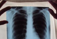 Рак легких на флюорографии