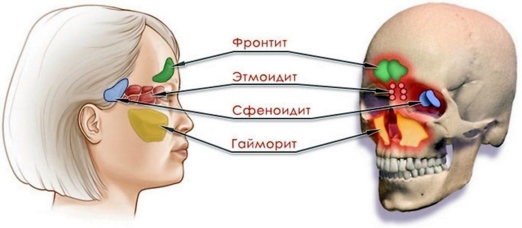 Разновидности синусита