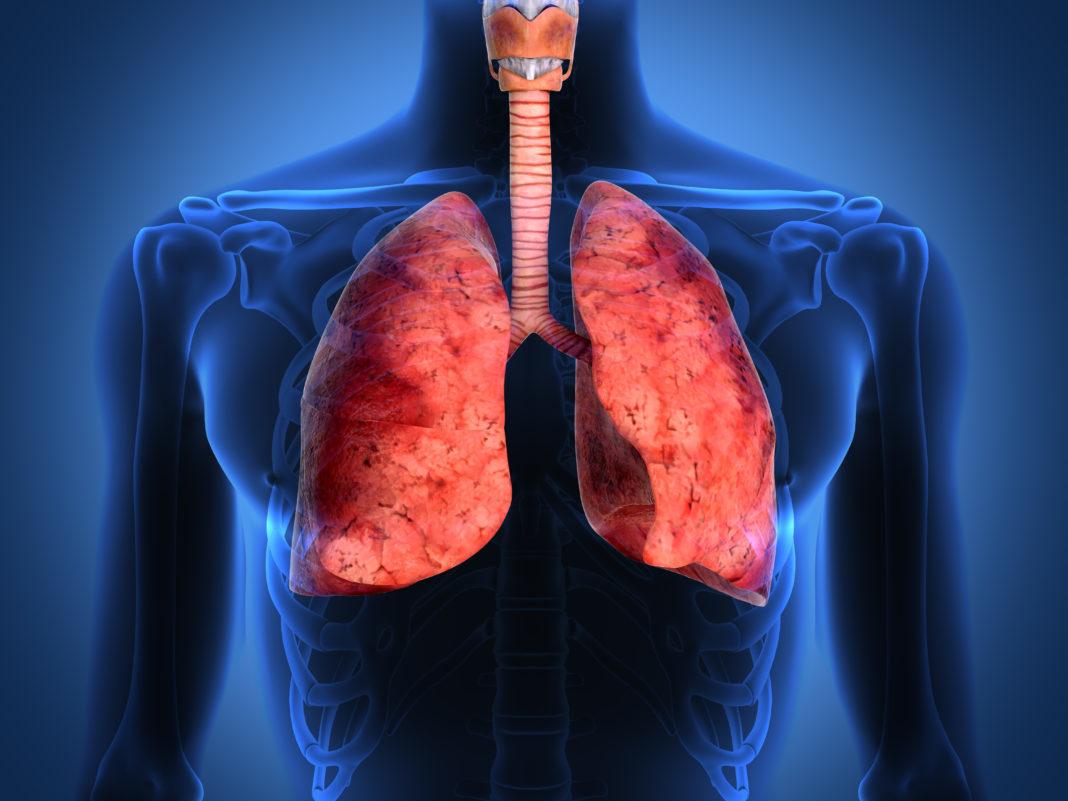 пневмония здоровые легкие картинка как