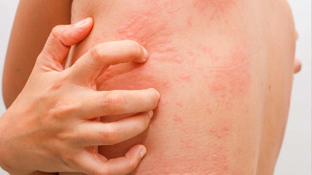 Аллергия на горчичники