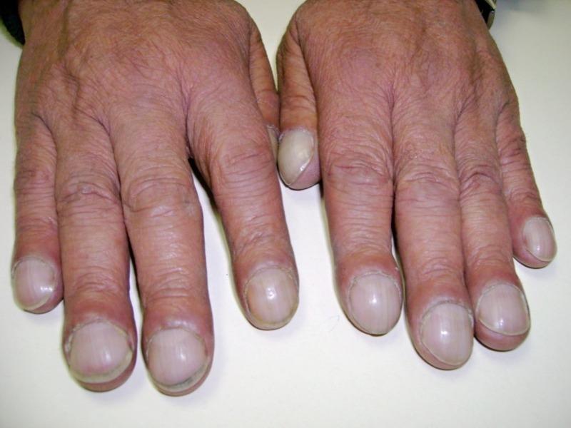 Как по пальцам рук понять, что у человека проблемы с легкими