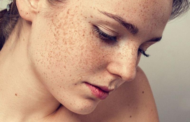 Как кожа дает понять, что вокруг нас плохой воздух
