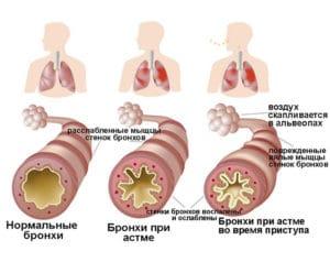 здоровые бронхи, бронхи при астме, бронхи при приступе астмы