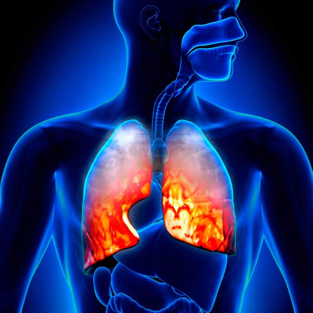 Застойная пневмония у лежачих