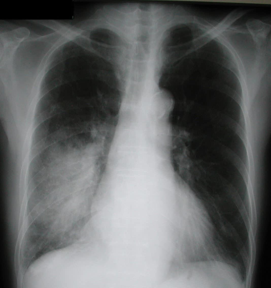 Рентген пневмонии у ребёнка