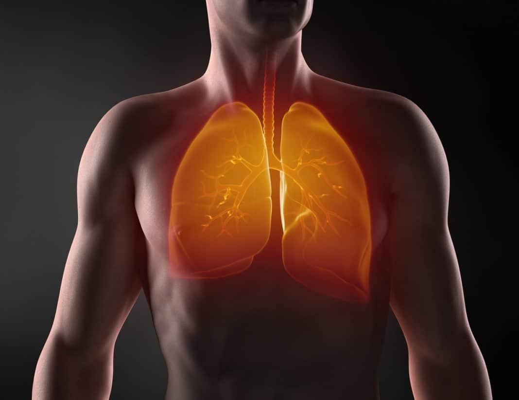 Особенности правосторонней и левосторонней пневмонии