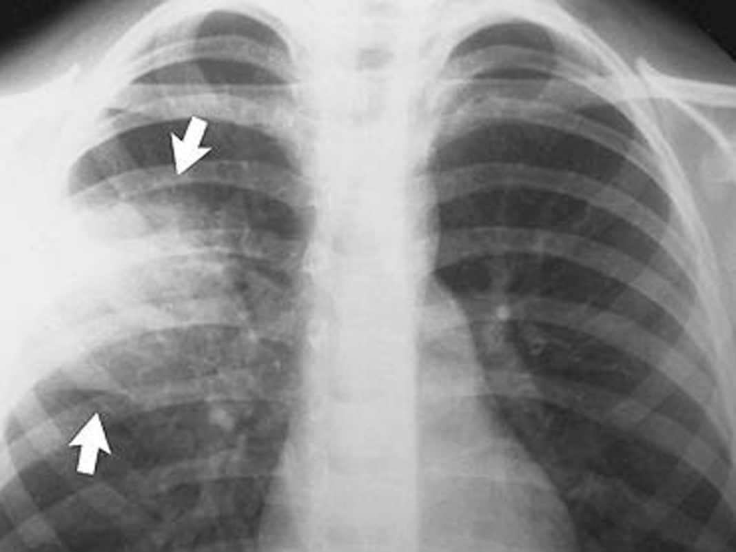 Крупозная пневмония на рентгеновских снимках