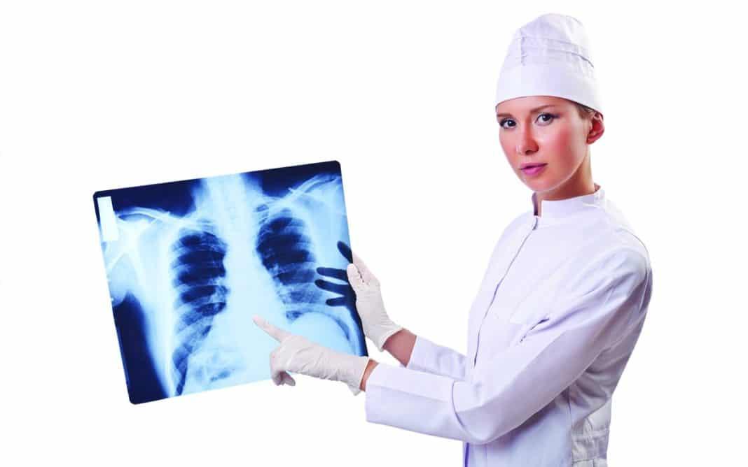 Показания к рентгену грудной клетки
