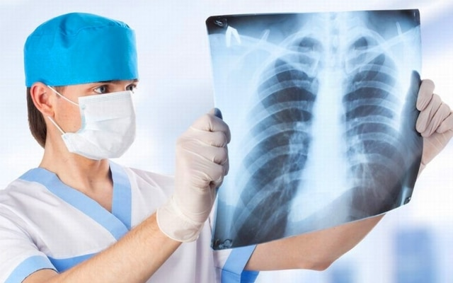 может ли пневмония быть без кашля
