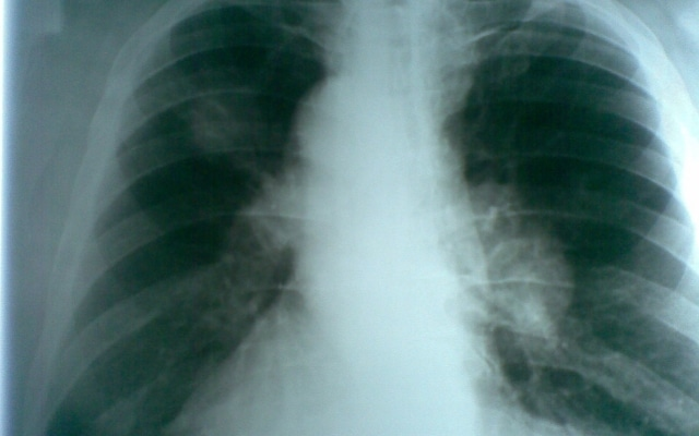 пятно на легких при рентгене