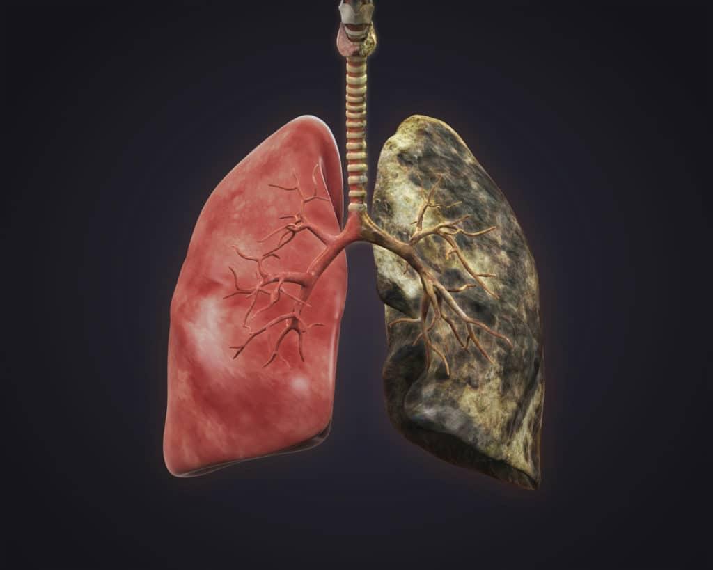 Влияние курения на лёгкие и бронхи