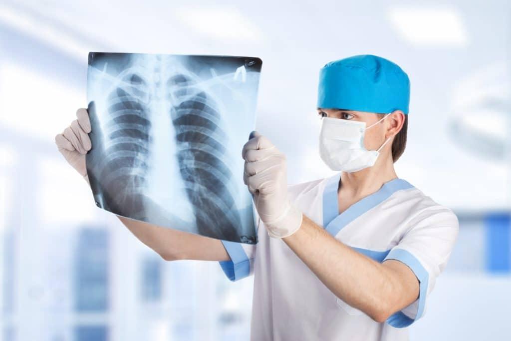 Рентгенологическое исследование туберкулёза