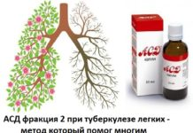 АСД 2 при туберкулезе