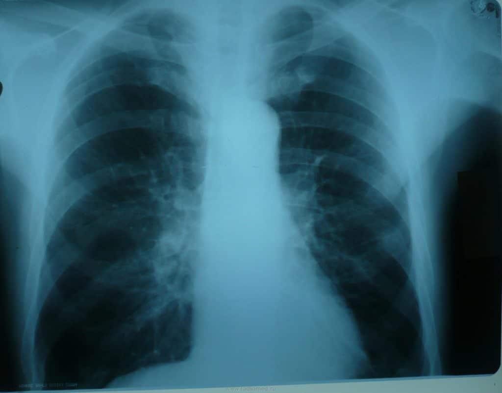 Очаговый туберкулёз