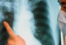 Открытая форма туберкулёза