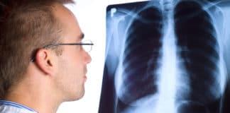 Как определить туберкулез: способы ранней диагностики
