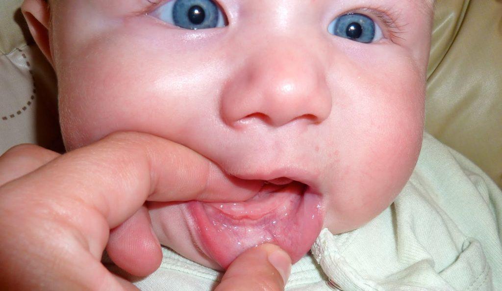 десны при прорезывании зубов