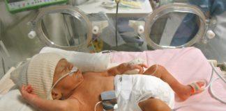 бронхолегочная дисплазия у недоношенных детей