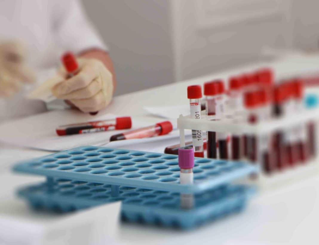 Анализ крови при бронхите